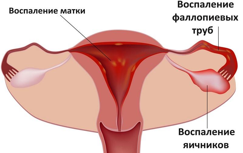 Боль в паху при ходьбе у женщин и мужчин: причины