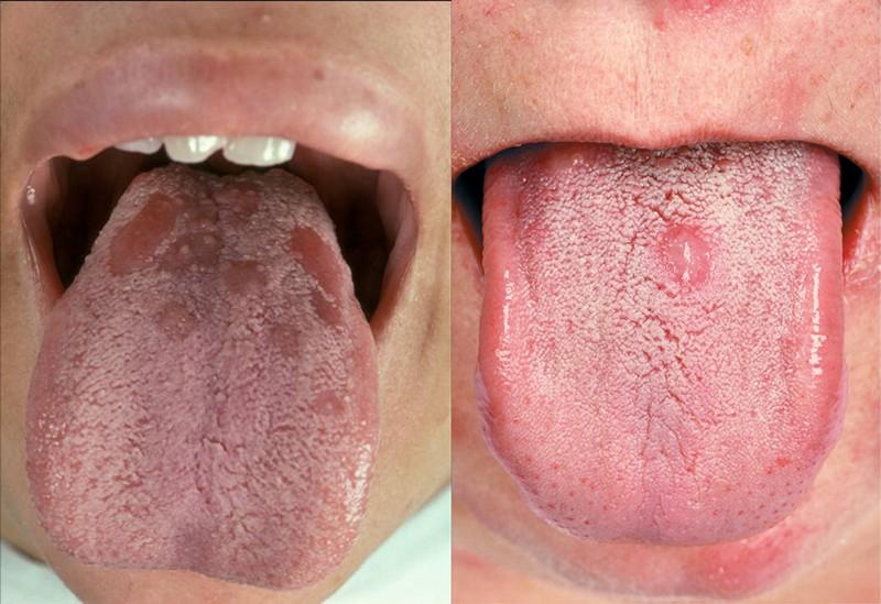 Симптомы вторичного сифилиса: проявления и как они выражаются на теле