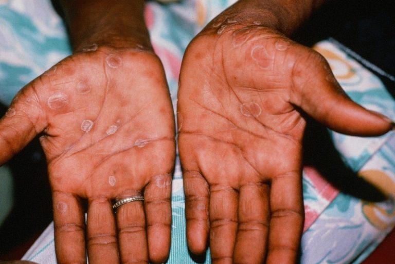Сифилис на руках, как выглядит, чем лечить, что делать, и теле