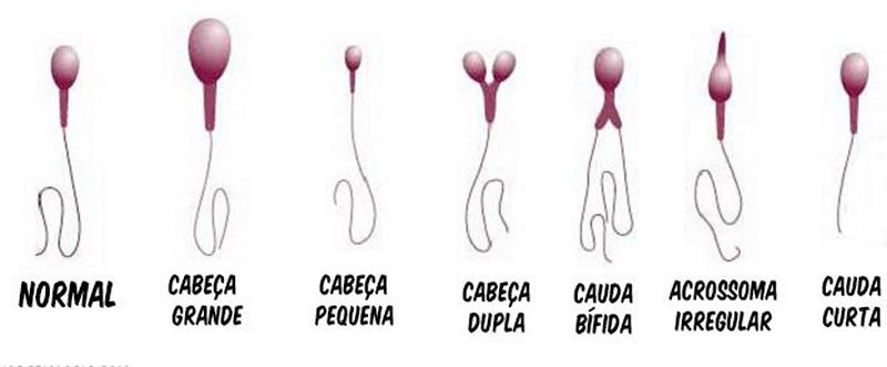 Патологии спермиев