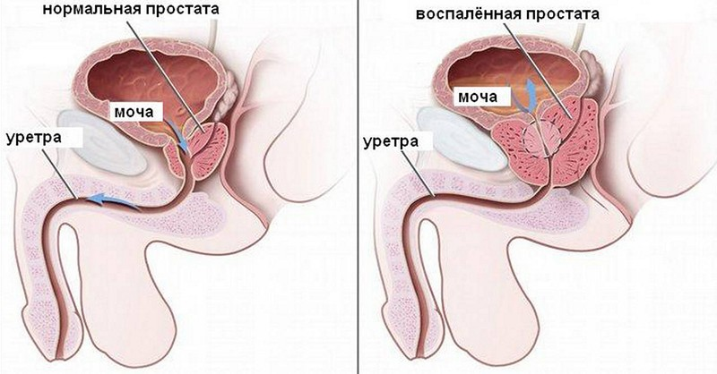 Трихомониаз у мужчин  симптомы лечение  Азбука здоровья