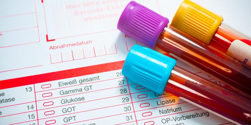 Анализ крови на гормоны женские