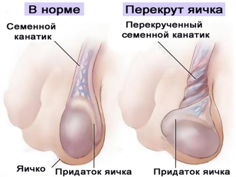 Заболевания яичек у мужчин