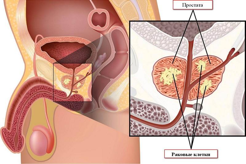диета при гиперплазии предстательной железы