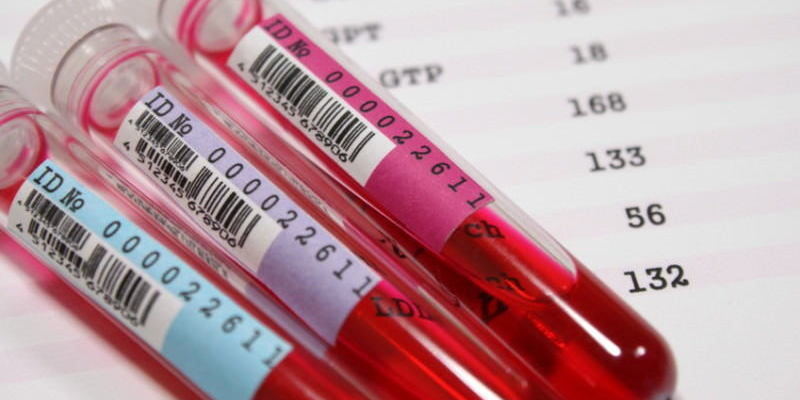 Анализ крови на уреаплазму