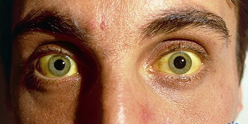 Гепатит А у взрослых