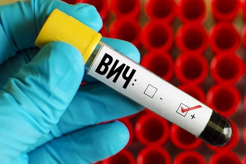 Методы диагностики ВИЧ
