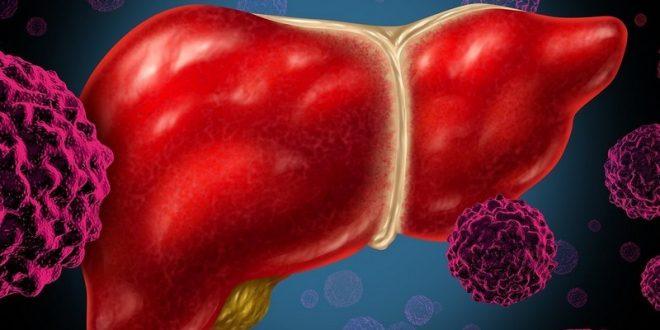 Как выявить гепатит с на ранней стадии
