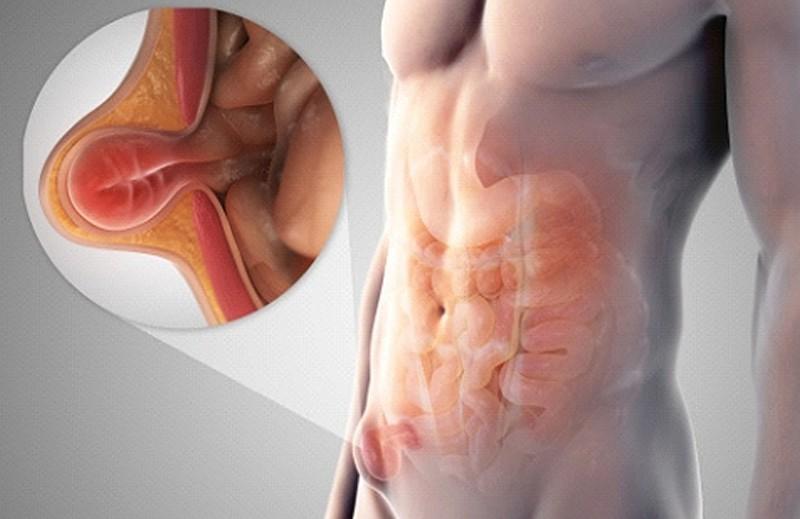 Воспаление паховых лимфоузлов у мужчин