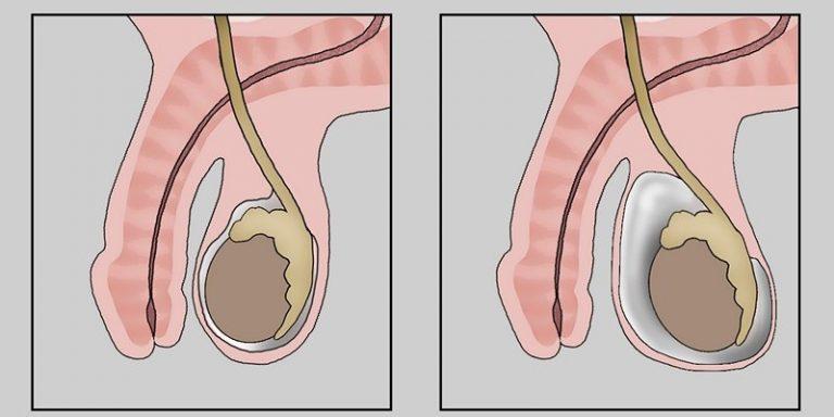 Водянка яичка у мужчин последствия