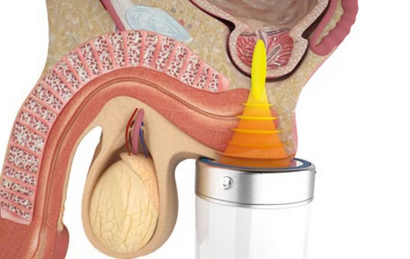 аппарат андрогин простатита
