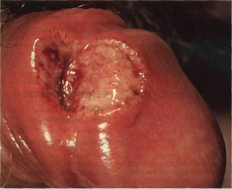 Сифилис на гениталиях