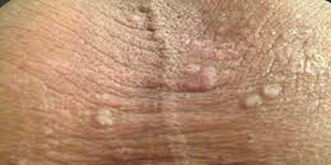 Как выглядит грибок на половых губах