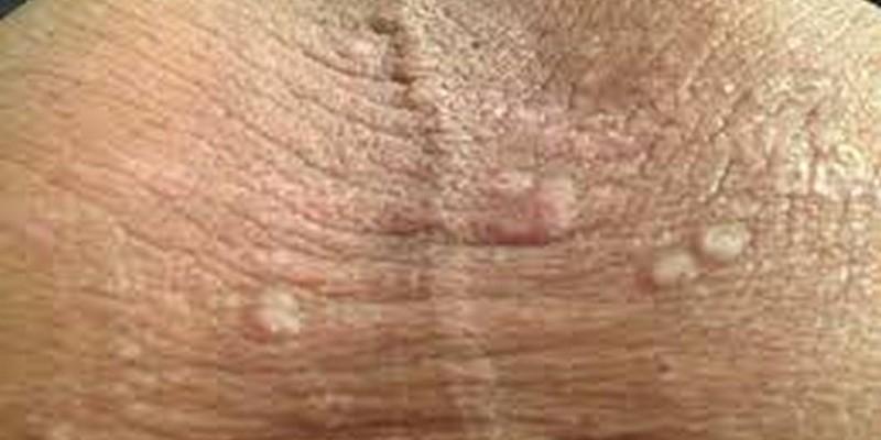 Грибок кожи половой член
