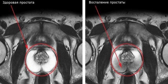 Заболевания предстательной железы у мужчин