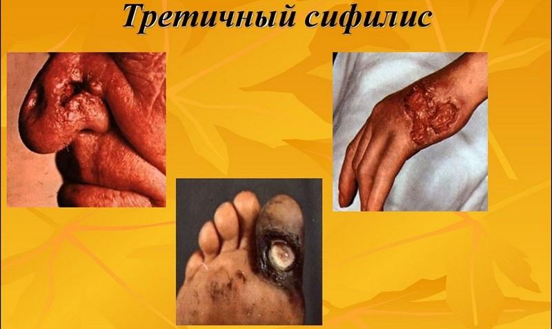 Сифилис третичный