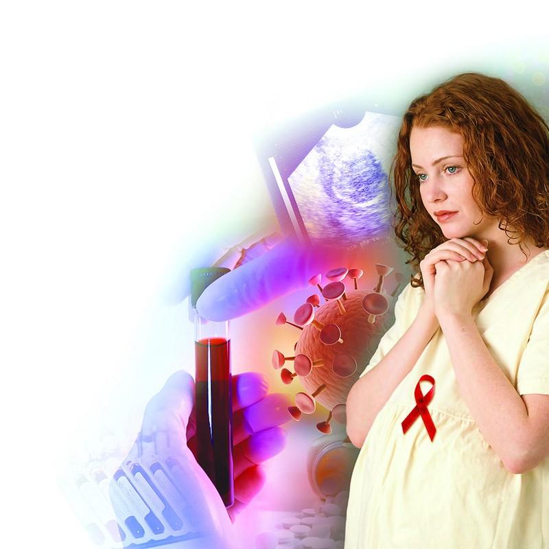 ВИЧ инфекция 3я стадия