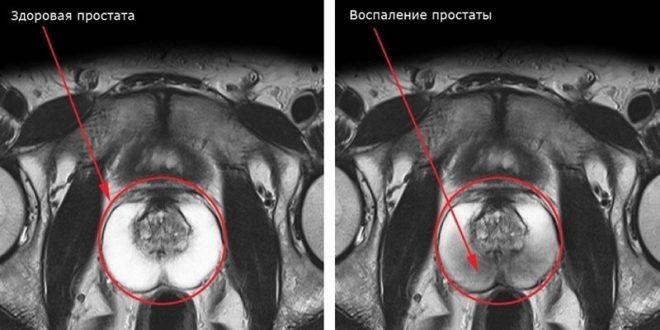Заболевания предстательной железы у мужчин симптомы и лечение