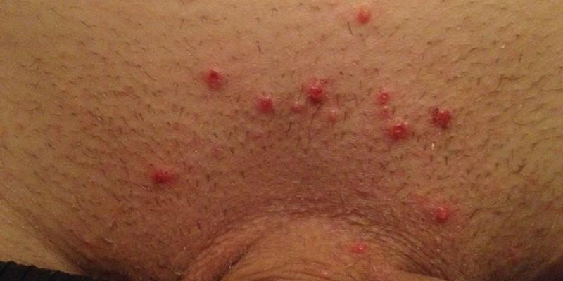 Высыпания при сифилисе, фото, видео, чем опасны, как избавиться