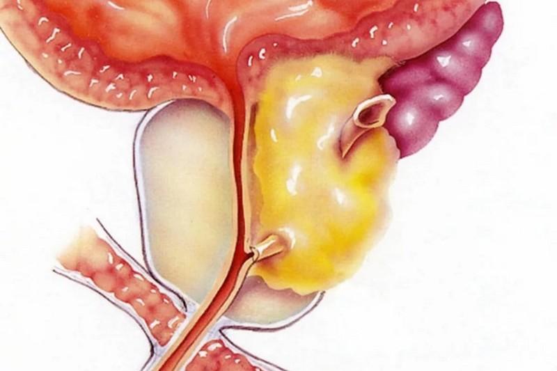 осложнение микоплазмоза: простатит