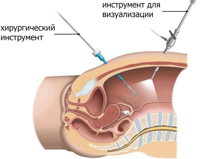 Операции простатит ростов на дону тромбоасс и простатит