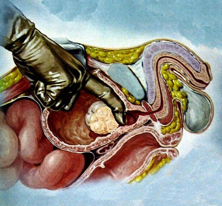 Узлы аденомы простаты