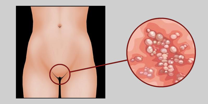Генитальный сифилис