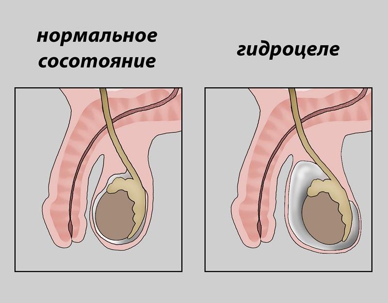 Переохлаждение яичек у мужчин симптомы