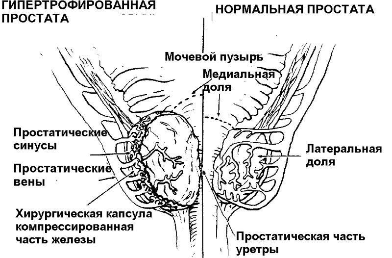 Предстательная железа размеры в норме