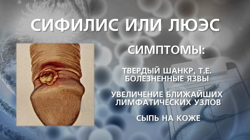 Мужской сифилис