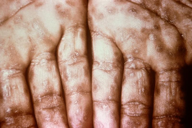 Осложнения сифилиса