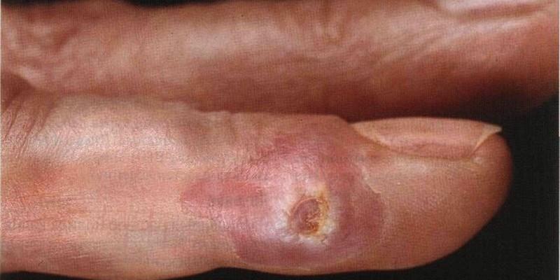 Сифилис на руках