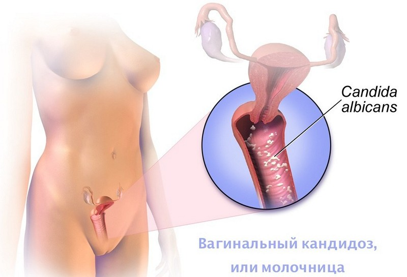 Флуконазол от молочницы: состав и инструкция