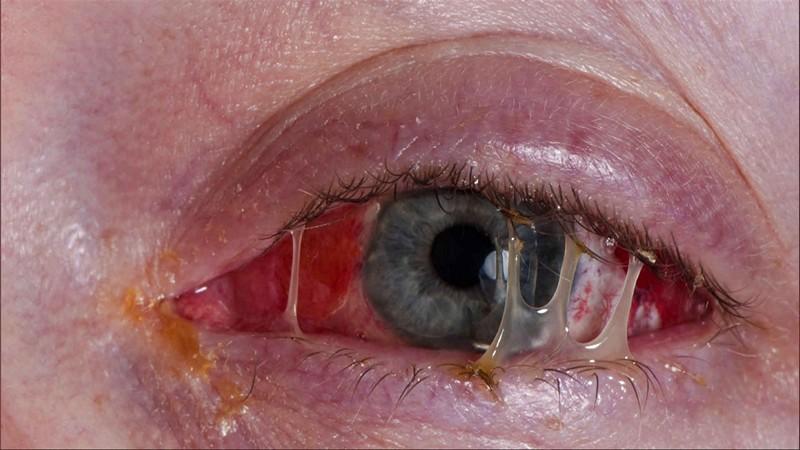Гонорея – что это за болезнь и как она проявляется?