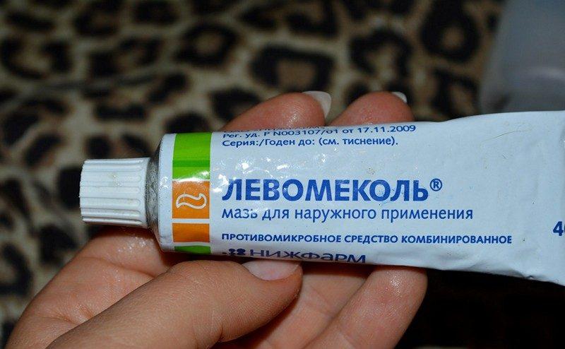 Баланопостит у ребенка – воспаление крайней плоти