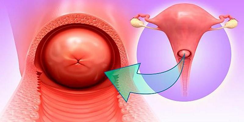 Цервицит у женщин – воспаление шейки матки