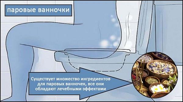 ванночки при цистите